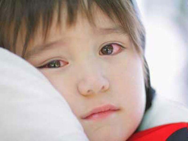 Biểu hiện bệnh đau mắt đỏ