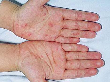 Nguyên nhân gây bệnh tay chân miệng