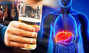 Gan nhiễm mở do rượu bia